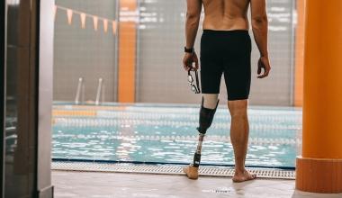 BGH-Urteil: Wer muss die Wartung von Prothesen bezahlen?